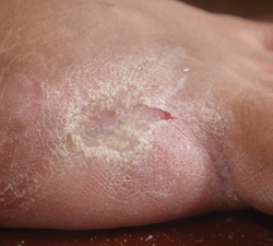 toe amputation infection-free with wheatgrass
