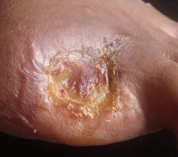 amputated diabetic toe healing