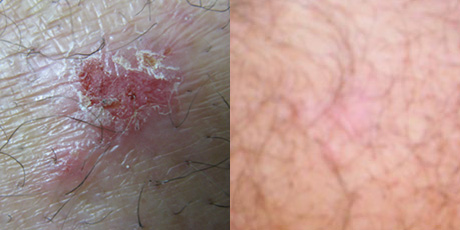 Non-healing skin lesion 5 years. Healed in 4 weeks with wheatgrass extract.