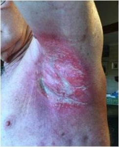 radiation burn pre-wheatgrass treatment