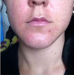 Facial skin damaged by face-peel healed after wheatgrass treatment