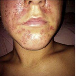 severe facial skin allergy to fruit acid peel treatment