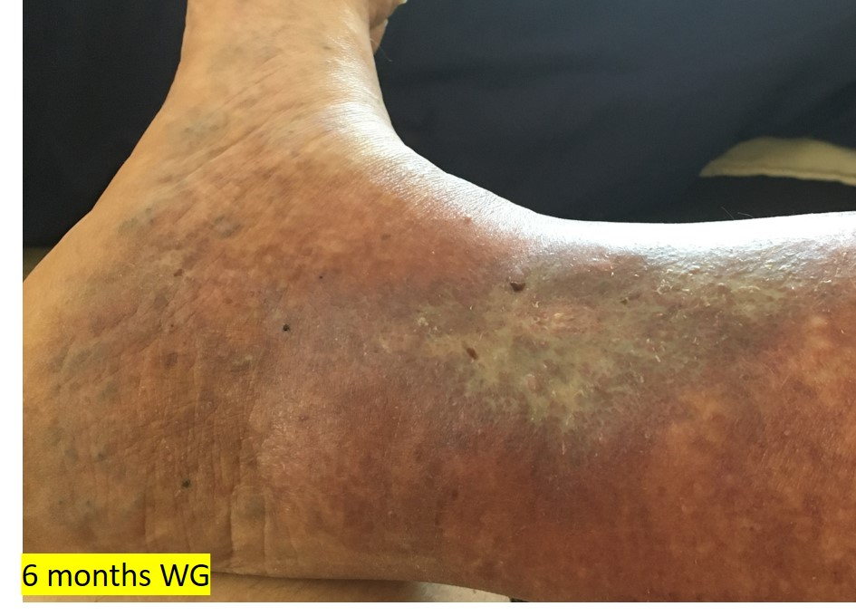 6months WG - healed
