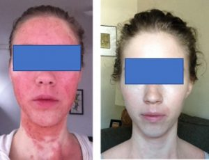 severe facial red skin syndrome affecting young woman and after treatment with wheatgrass extract
