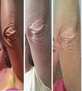 elephant skin on elbow caused by topical steroids & improved with wheatgrass