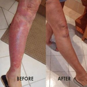 eczema-leg