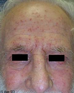 eczema_flare (2)