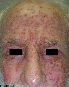 eczema_flare(1)