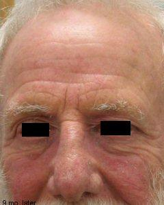 eczema_flare(4)