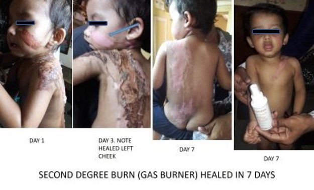 Large area second degree burns heal in 7 days.