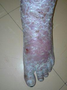 wheatgrass heals venous eczema .