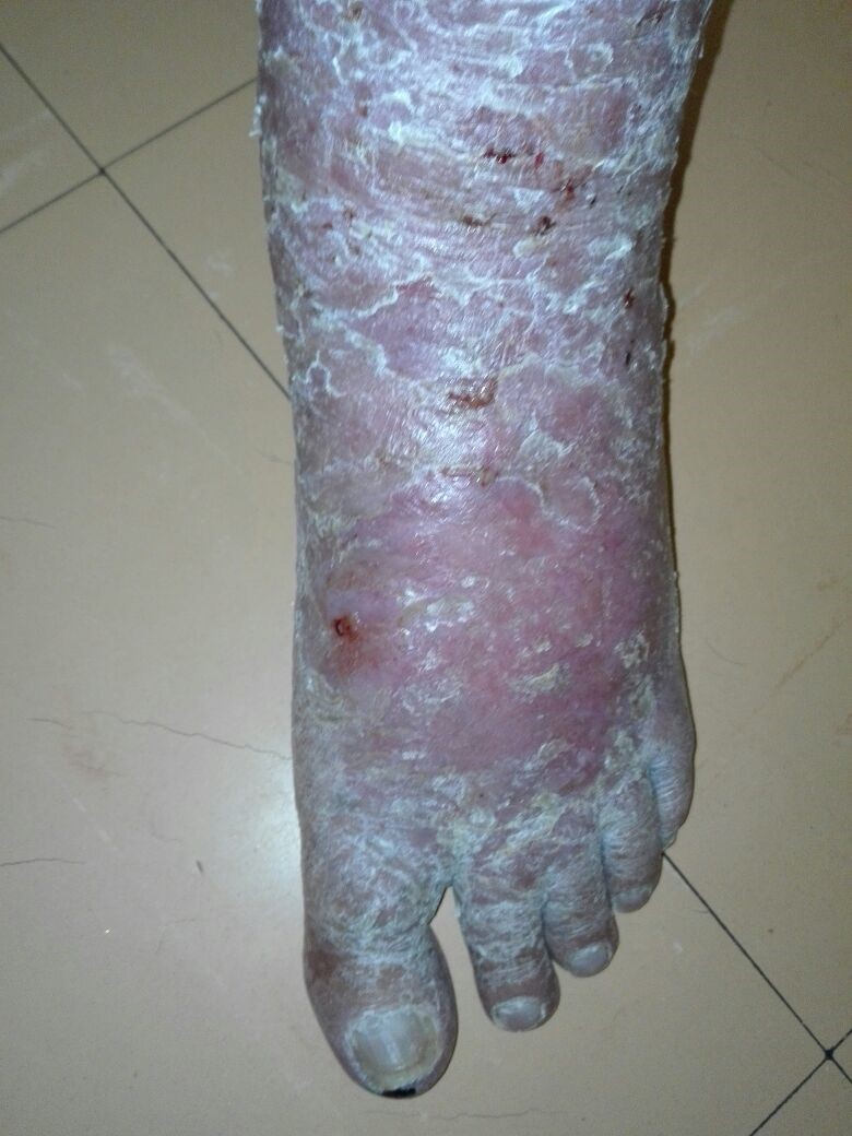 82 y.o. male. Venous eczema 2 years. In constant pain. No response to numerous treatments. Poor blood circulation. Wheatgrass extract applied twice weekly.