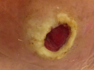 6 months after commencement of wheatgrass treatment, there is a fully debrided, well-perfused, pain-free ulcer that is about to commence wound closure.