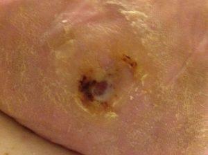 6 weeks later, renewed blood supply has enabled, ulcer repair