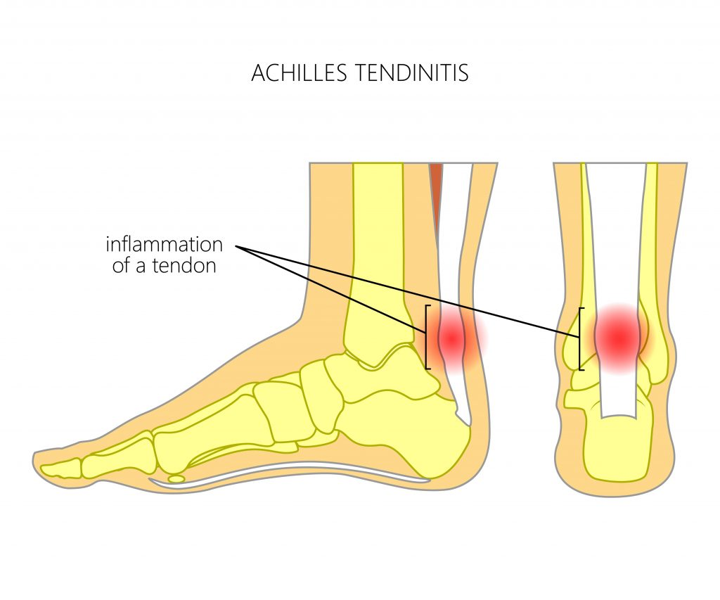 area of pain due to Achilles tendonitis