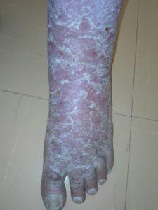 wheatgrass heals venous eczema