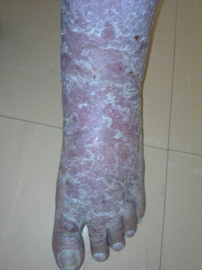 wheatgrass heals venous ulcers