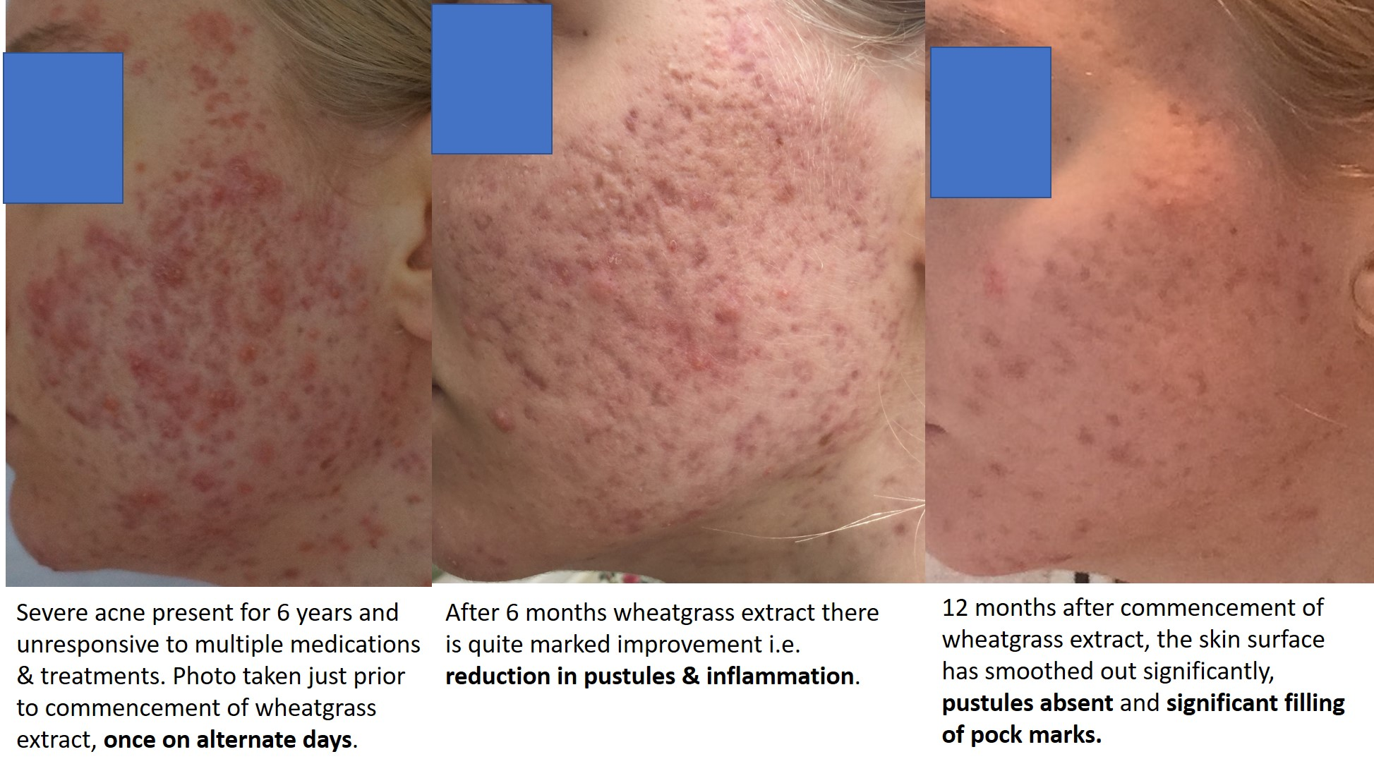 Severe acne vulgaris for six years significantly improved with wheatgrass extract.