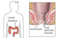 Fig. 1. Anal fissure is a split in the anal wall as shown here.