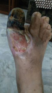 Gangrene toe. Healing with wheatgrass extract.