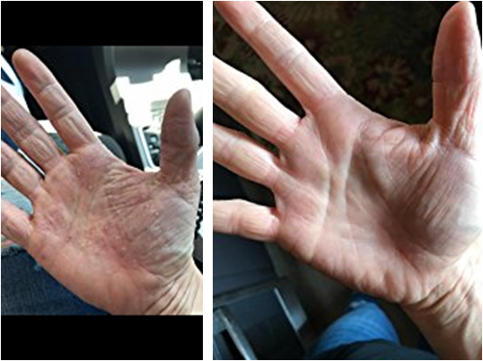 Before and after healing of topical steroid damaged hand with Dr Wheatgrass Skin Recovery Spray