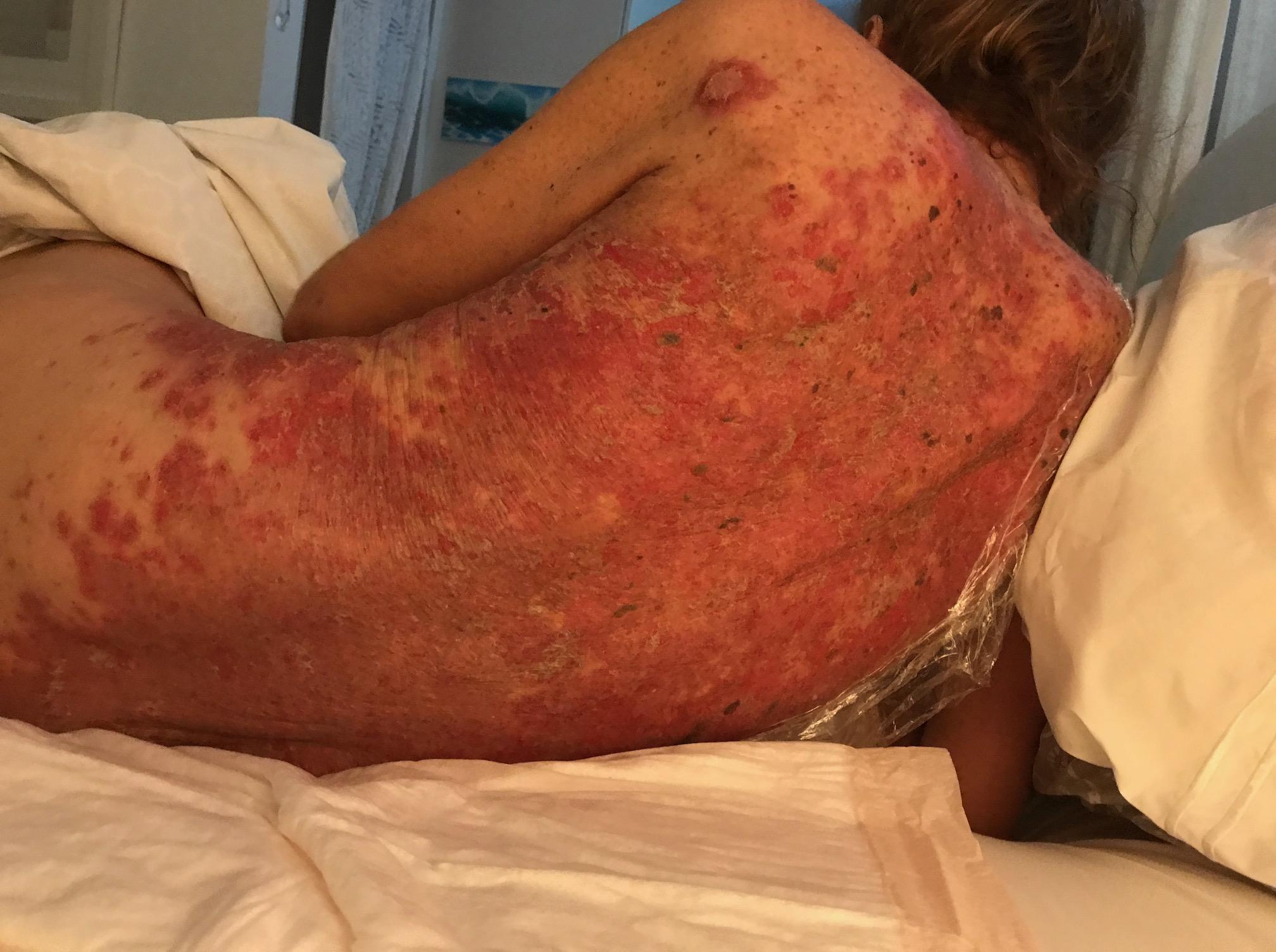 Hailey Hailey disease