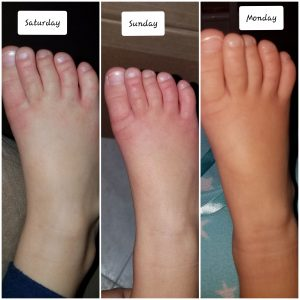 Hand, foot and mouth disease (viral infection) - A Medical ...