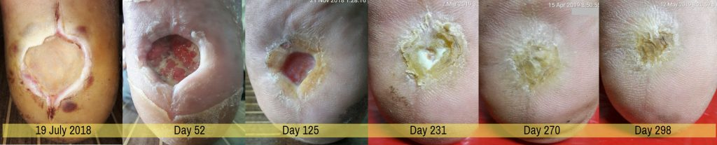 infected diabetic foot wound healed with wheatgrass extract